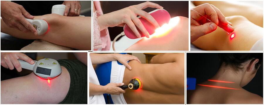انواع دردهایی که با لیزر پرتوان در کلینیک درد راد درمان می شود