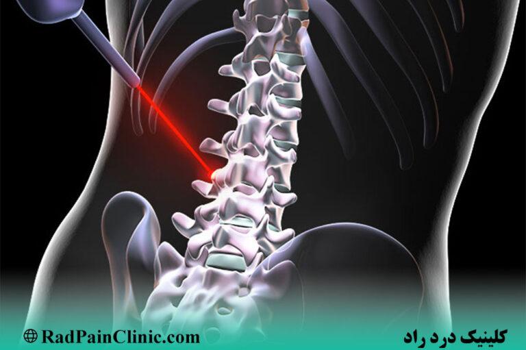 تابش لیزر پرتوان به ستون فقرات در کلینیک درد راد